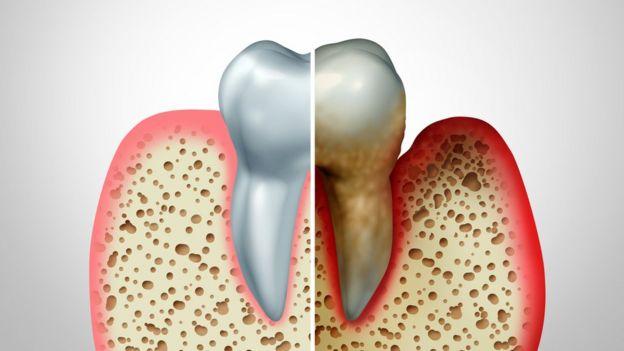 A la izquierda un diente normal, a la derecha uno cubierto de placa que ha provocado inflación en las encías.