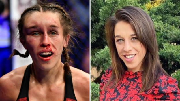 Split picture of Joanna Jedrzejczyk immediately after UFC 248 and when her facial injury had recovered
