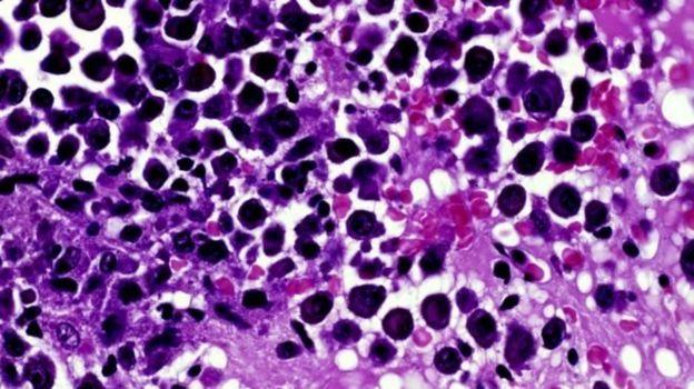 کشف تازه برای مقابله با مقاوم شدن سلولهای سرطانی