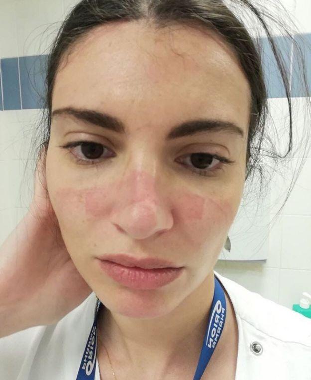 Una joven enfermera con la cara irritada por el uso de una máscara