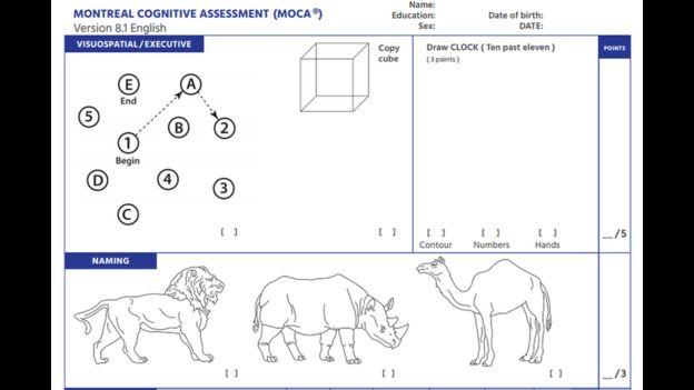 Ejemplo del examen neuropsicológico llamado Evaluación Cognitiva de Montreal. Foto: MOCA.