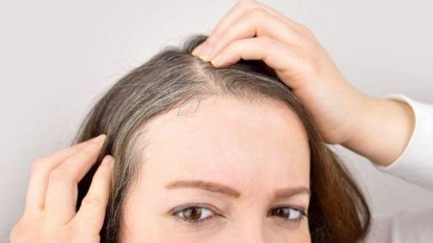 فشار عصبی باعث سفید شدن موی سر میشود