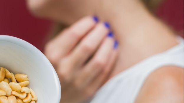 Mujer con alergia al maní