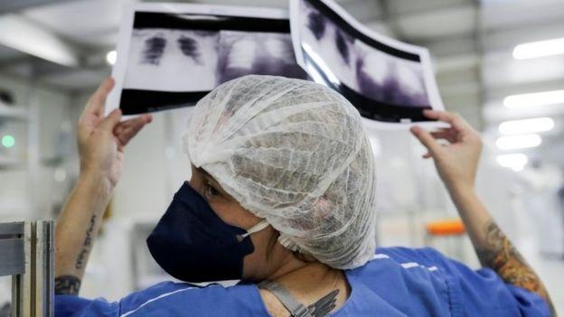 Médico olha raio-x em hospital de Guarulhos