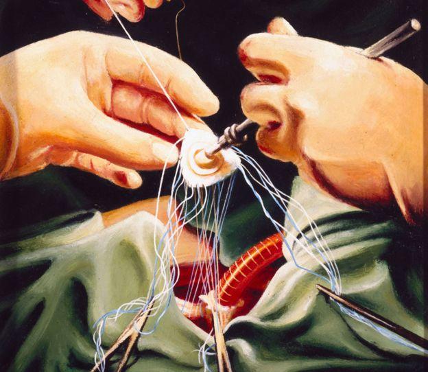 Un cuadro de Keith Holmes que muestra las manos del doctor Stephen Westaby durante una cirugía de corazón.