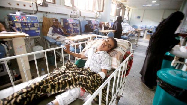 طفل مصاب في مستشفى في اليمن