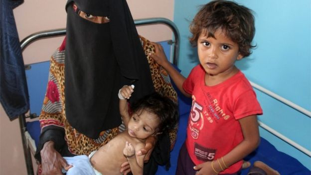 Woman and children in hospital in Khokha, Yemen (file photo)