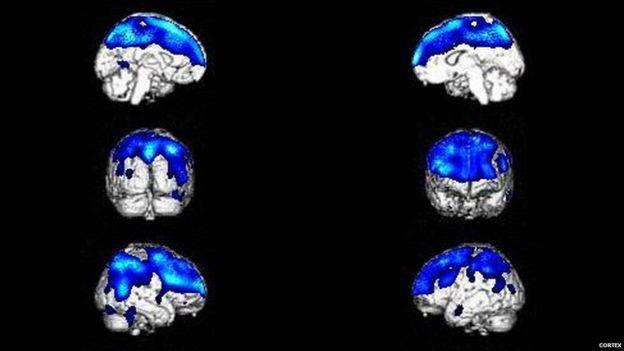 Cérebros com a Síndrome de Cotard