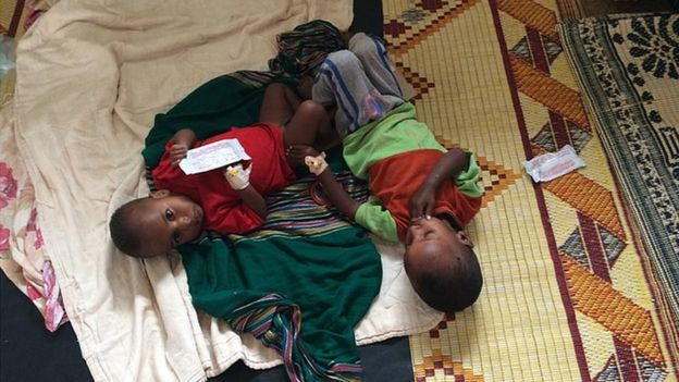 Two severely malnourished children in Baidoa regional hospital