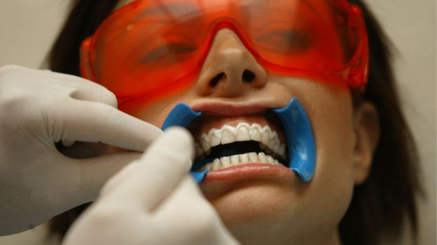Professional teeth whitening treatments are often more powerful than those used at home