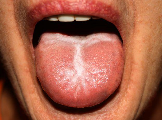 Espinillas blancas en la garganta