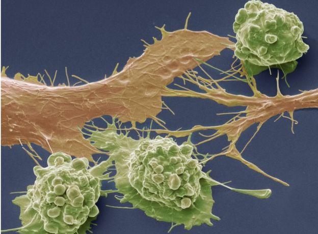 肠癌癌细胞