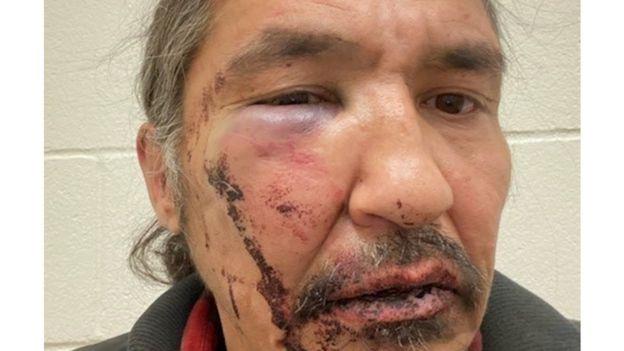 Athabasca Chipewyan Hlavní národy Allan Adam po násilném zatčení