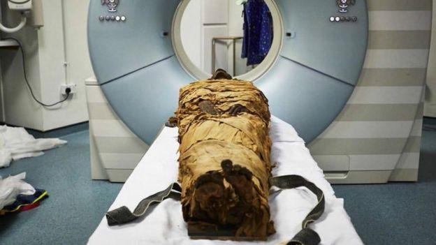 Múmia de Nesyamun é submetida a tomografia computadorizada no Leeds General Infirmary