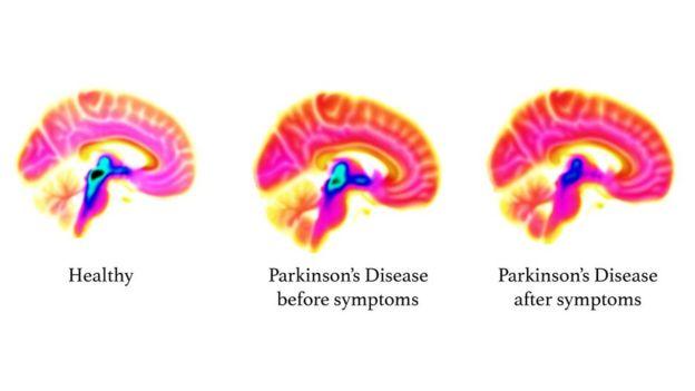 Tomografias do crânio mostram uma redução na serotonina (área azul/preta) à medida que o Parkinson avança