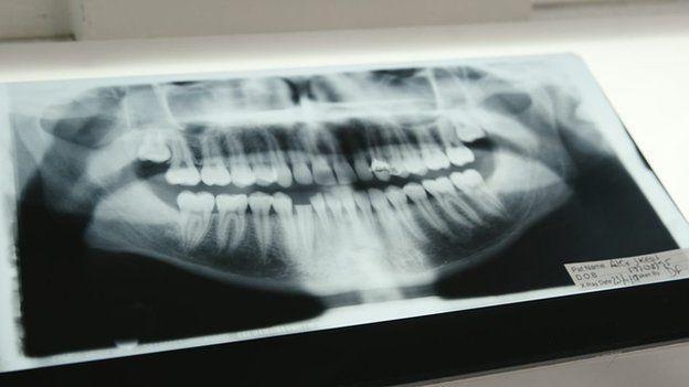 Radiografía de Alex mostrando dientes rotos.