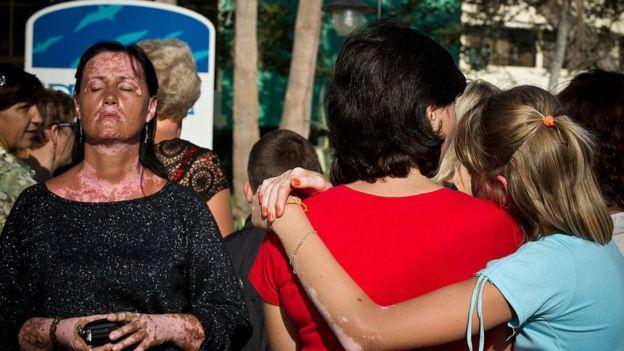 Mulher com vitiligo em meio a outras pessoas sob sol em Cuba