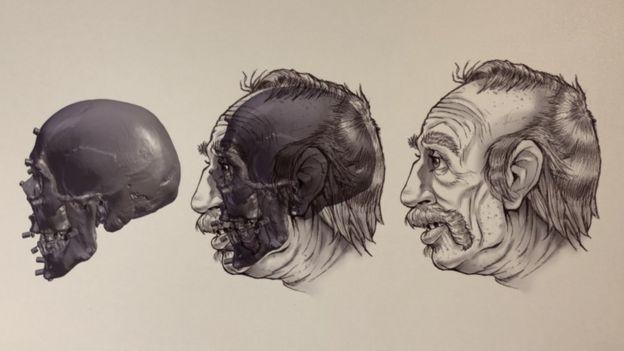 reconstrucción facial 038