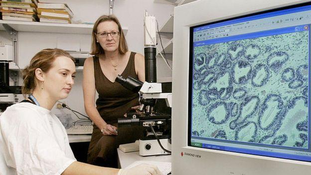 அதிக உயிர்களை காக்கும் ப்ரோஸ்டேட் புற்றுநோய் சிகிச்சை