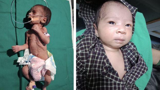 Bayi yang Ditemukan Terkubur Hidup-hidup Dalam Pot Kini Sudah Sehat