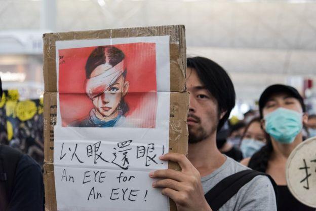 Người biểu tình giơ cao bức tranh vẽ người phụ nữ bị bắn vào mắt trong lúc biểu tình