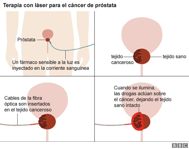 radioterapia adyuvante después de una prostatectomía radical para el cáncer de próstata