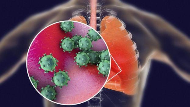 Ilustración del nuevo coronavirus en los pulmones