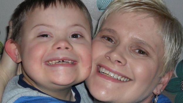 Joseph Hale, el niño con síndrome de Down que debuta como modelo