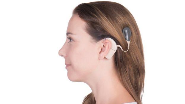 ผู้หญิงที่สวมอุปกรณ์ cochlear