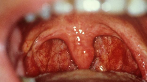 Sexually transmitted diseases like gonorrhea in the throat