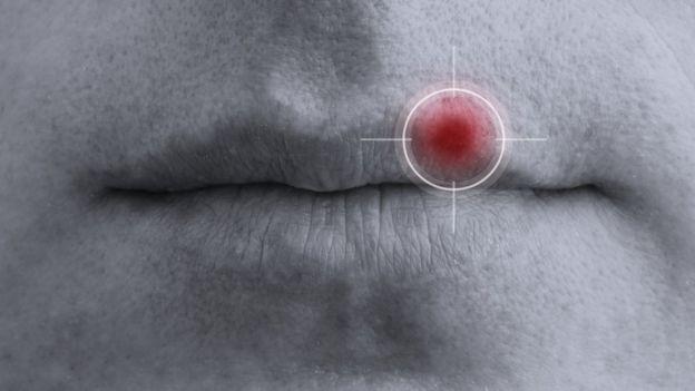 Que causa el herpes
