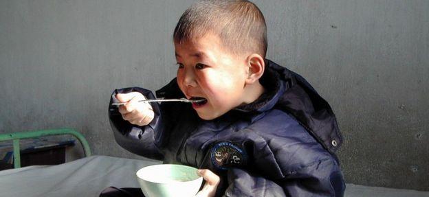 Un niño norcoreano malnutrido come alimento rico en vitaminas y minerales enviado por el Programa Mundial de Alimentos de la ONU al hospital del municipio de Mundok, al sur de Pyongyang, 4 febrero de 2004