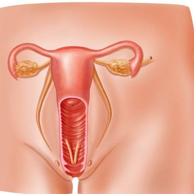 Granitos en la vulva y ardor