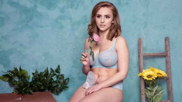 Hannah Witton in her underwear showing off her stoma