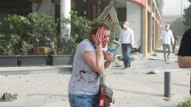 لبنانية مصابة