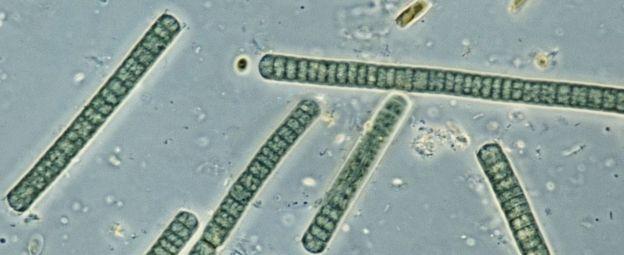 Algas verdiazules, vistas al microscopio.