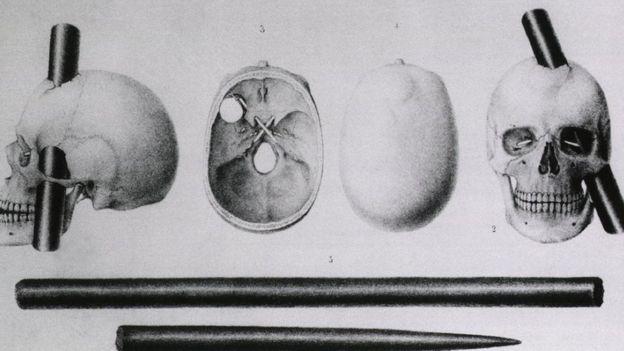 Imagem de barra de ferro em um crânio