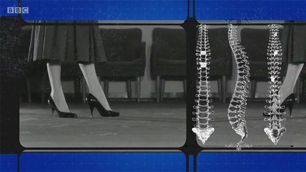 Mujer en tacones e imágenes de la columna vertebral