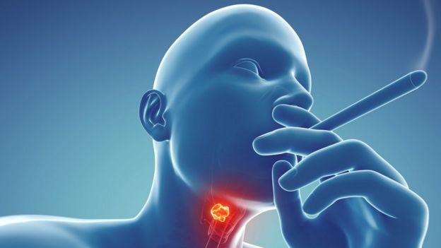 Куріння підвищує ризик розвитку раку гортані