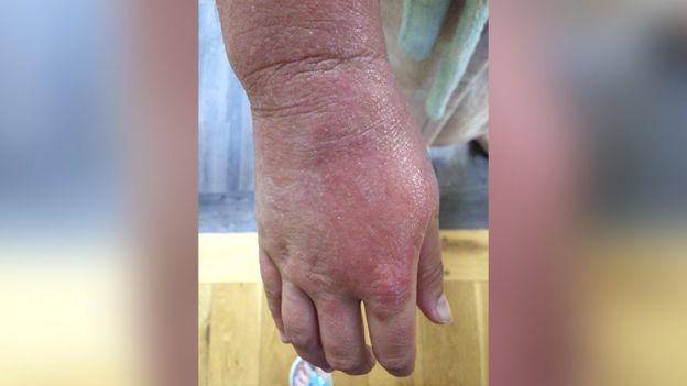 Anna's hand with eczema