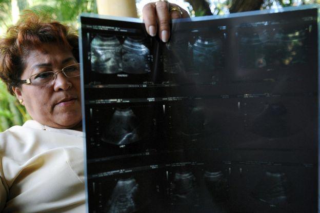 """Iris Rodríguez, una víctima del """"jarabe de la muerte"""", muestra una placa de rayos X en Ciudad de Panamá el 25 de marzo de 2009. (Foto: Elmer Martínez / AFP / Getty Images)"""