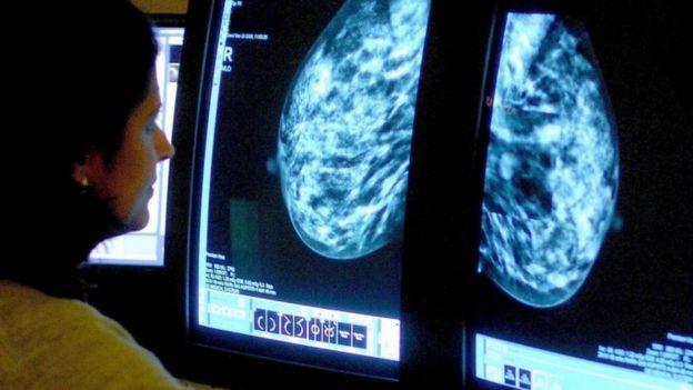 mamogram görüntüleri