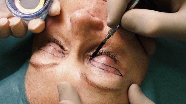 A person having facial cosmetic surgery