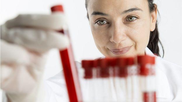 Mulher com amostra de sangue