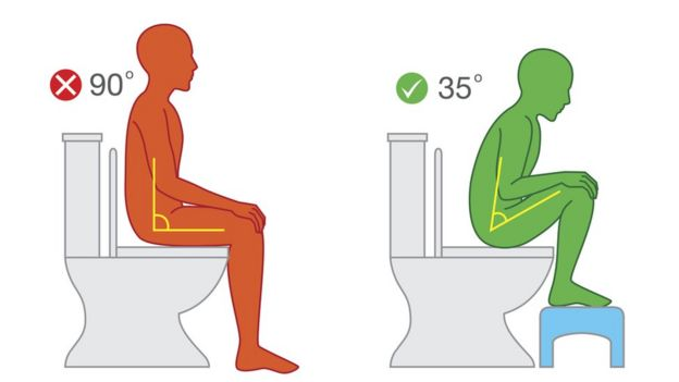 Ilustración de cómo mejorar la posición de 90 grados a 35 grados para ir al baño.