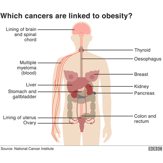 Which cancers are linked to obesity?