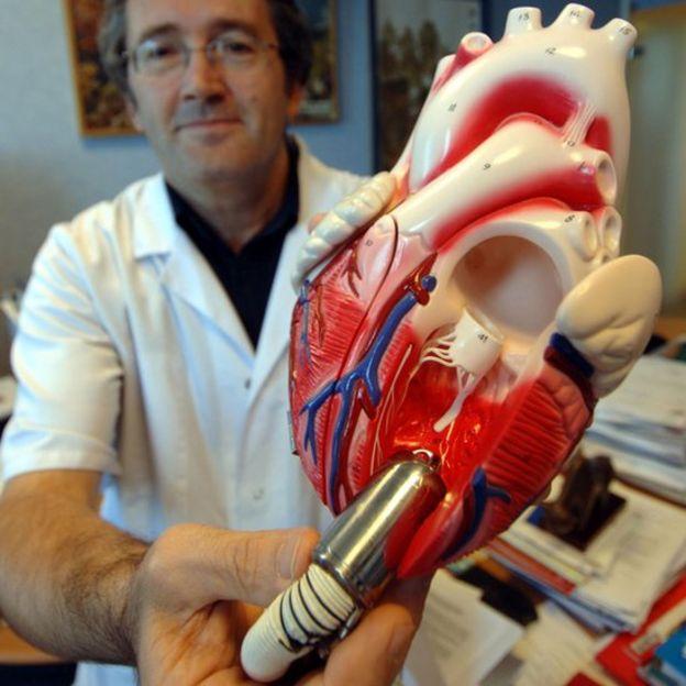 Un médico muestra el Jarvik 2000, el primer dispositivo de asistencia ventricular alimentado por batería.