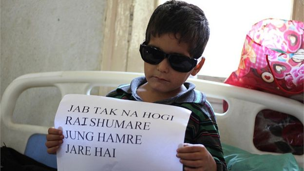 طفل مصاب برصاص الشرطة في كشمير يرفع لافتة