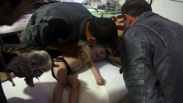 A child is treated at a hospital in Douma, eastern Ghouta in Syria, after a suspected chemical attack (7 April 2018)