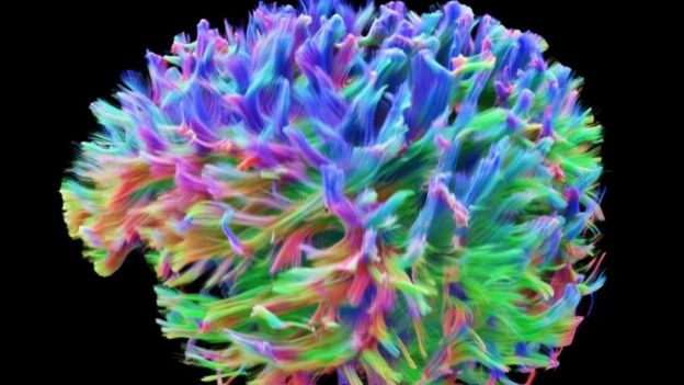 Outstanding What The Brains Wiring Looks Like Bbc News Wiring Digital Resources Hutpapmognl